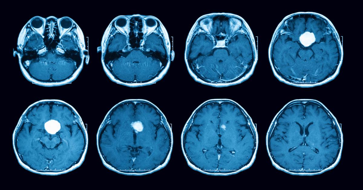 Daño neurológico provocado por la hipertensión arterial