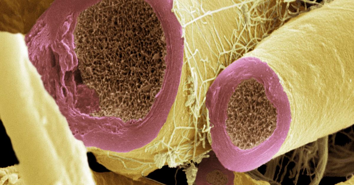 Células productoras de mielina